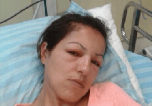 שפרה אגרונוב בבית החולים (צילום: עצמי)
