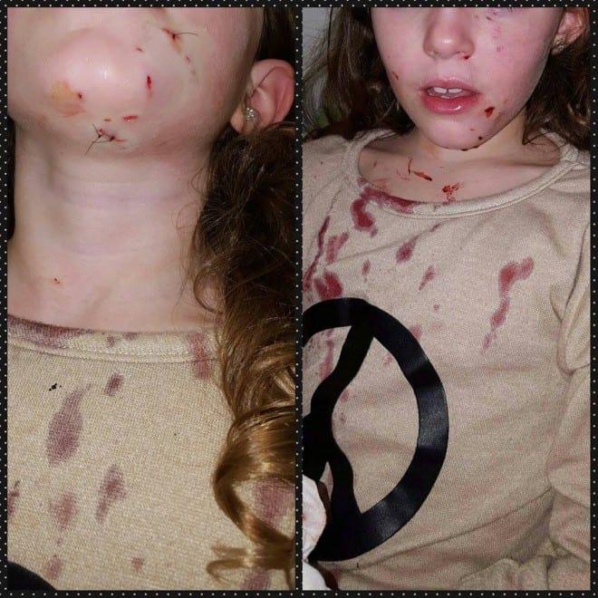 מי ראה? הילדה שהותקפה על ידי כלב בקרית ביאליק (צילום פייסבוק)