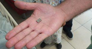 המגנטים שהוצאו מבטנו של הילד. צילום דוברות בית החולים