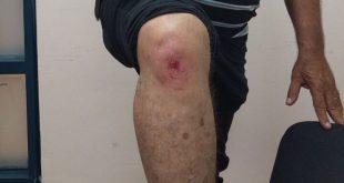הפצוע מהתקרית (צילום דוברות המשטרה)