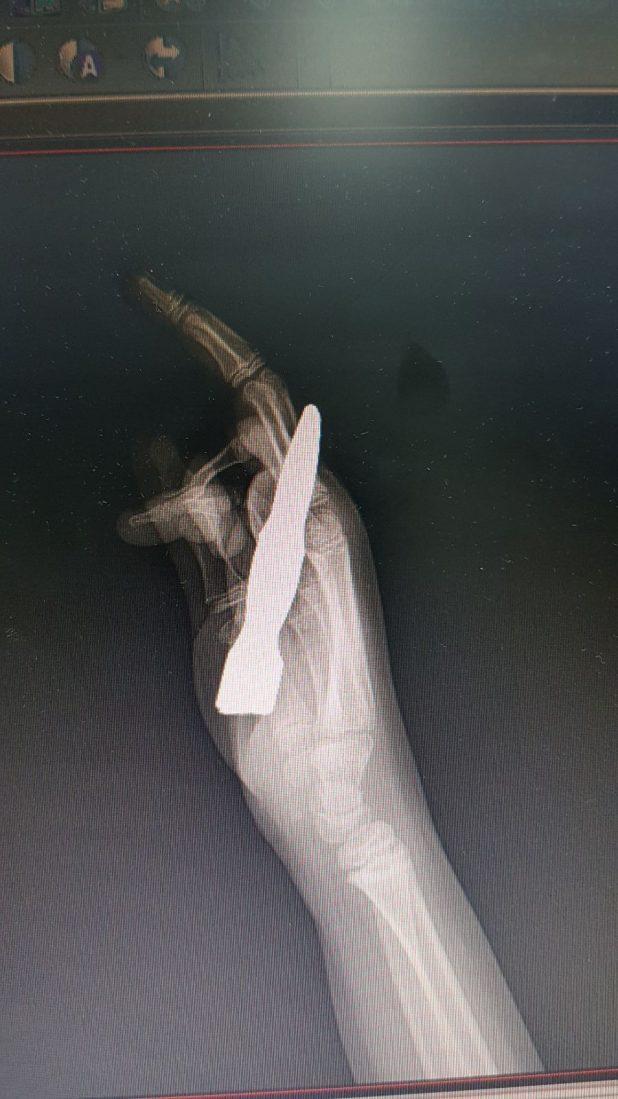 הדמייה של הילד עם הגדר בתוכה (צילום דוברות העמק)