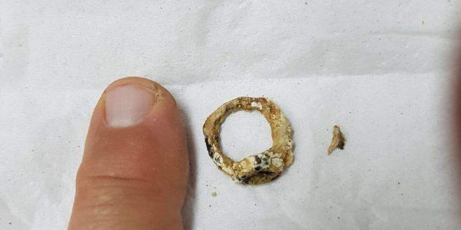 הטבעת שהוצאה מאפבה של הילדה. צילום: דוברות כללית
