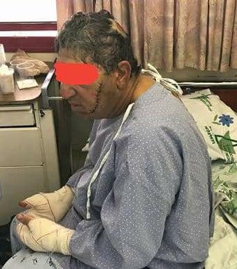 חזי יחזקאל בבית חולים צילום עצמי