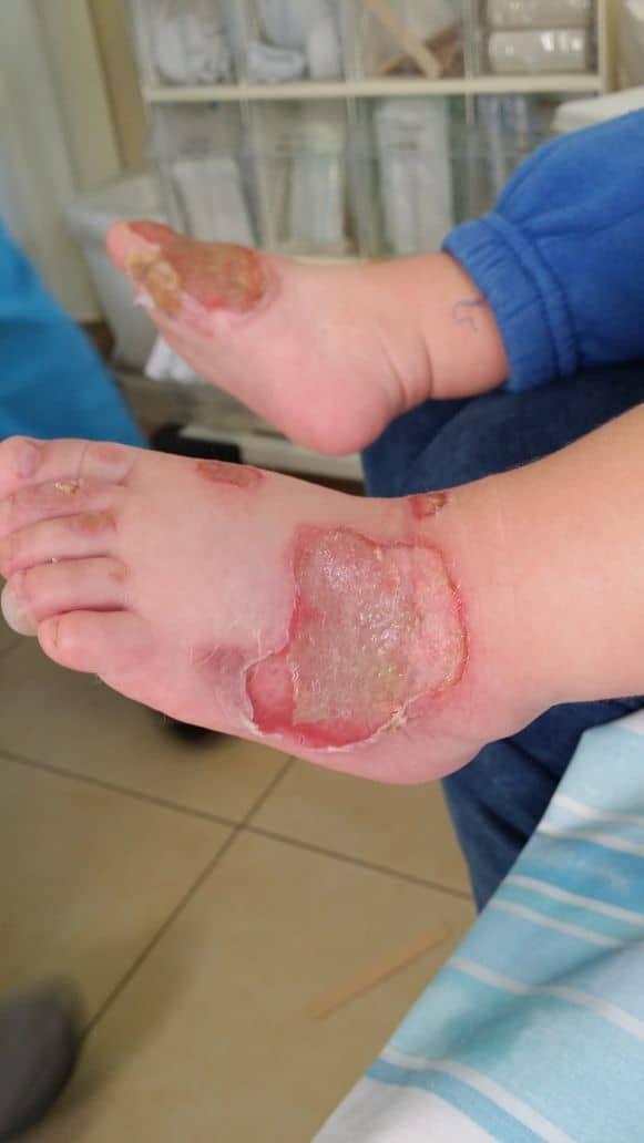 כוויות ברגליים. צילום מתוך תיק התביעה
