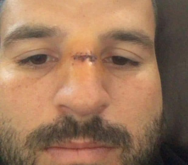 פדרו והאף הפצוע (צילום עצמי)