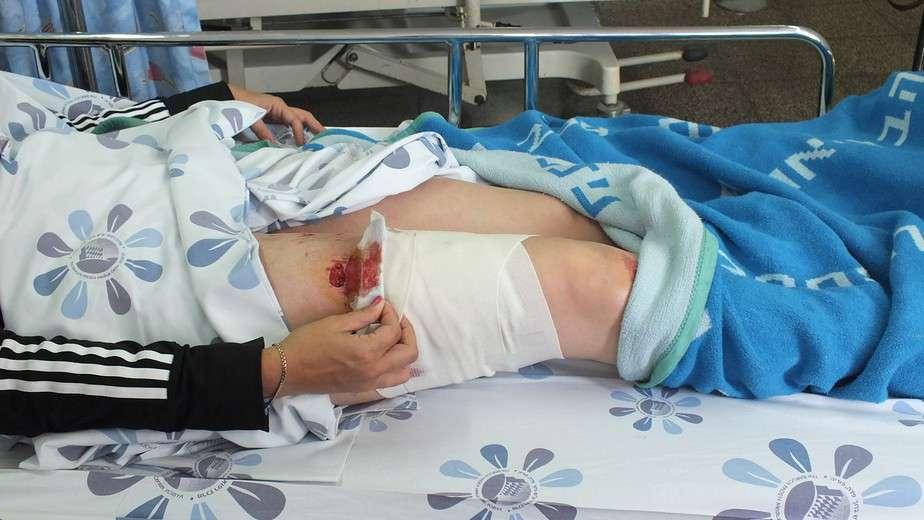 אשה הותקפה על ידי פיטבול